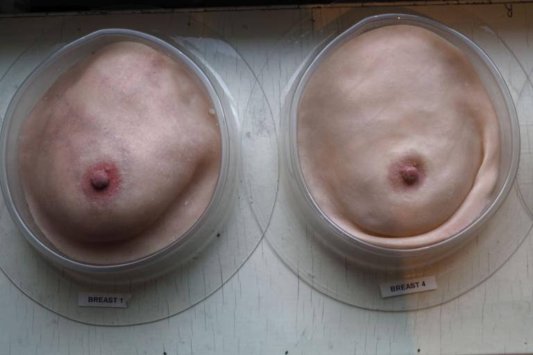 Breast models by Dr. Veitch. (Photo: JW)